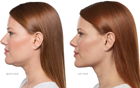 About Kybella