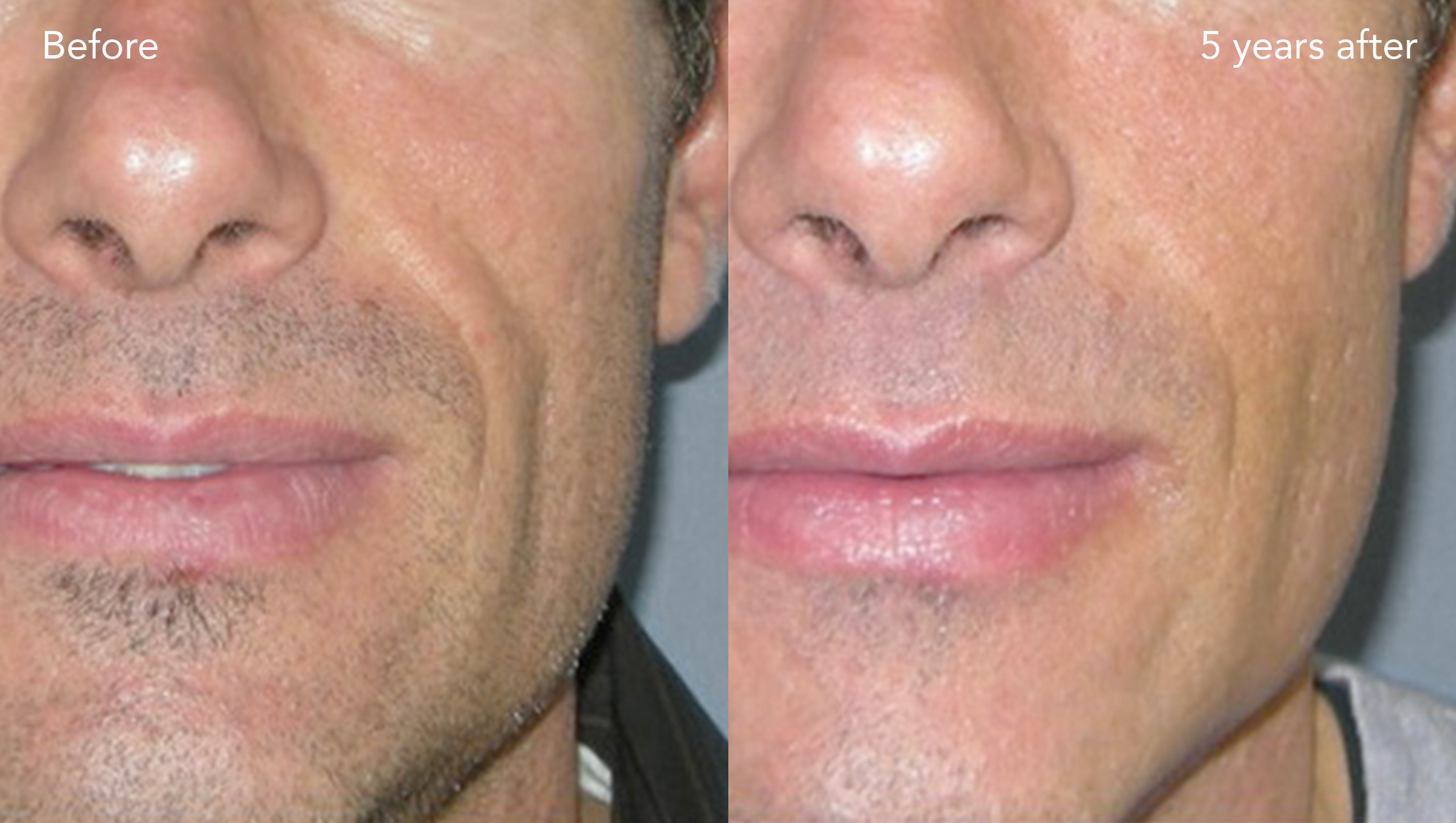 Bellafill before and after for a male patient