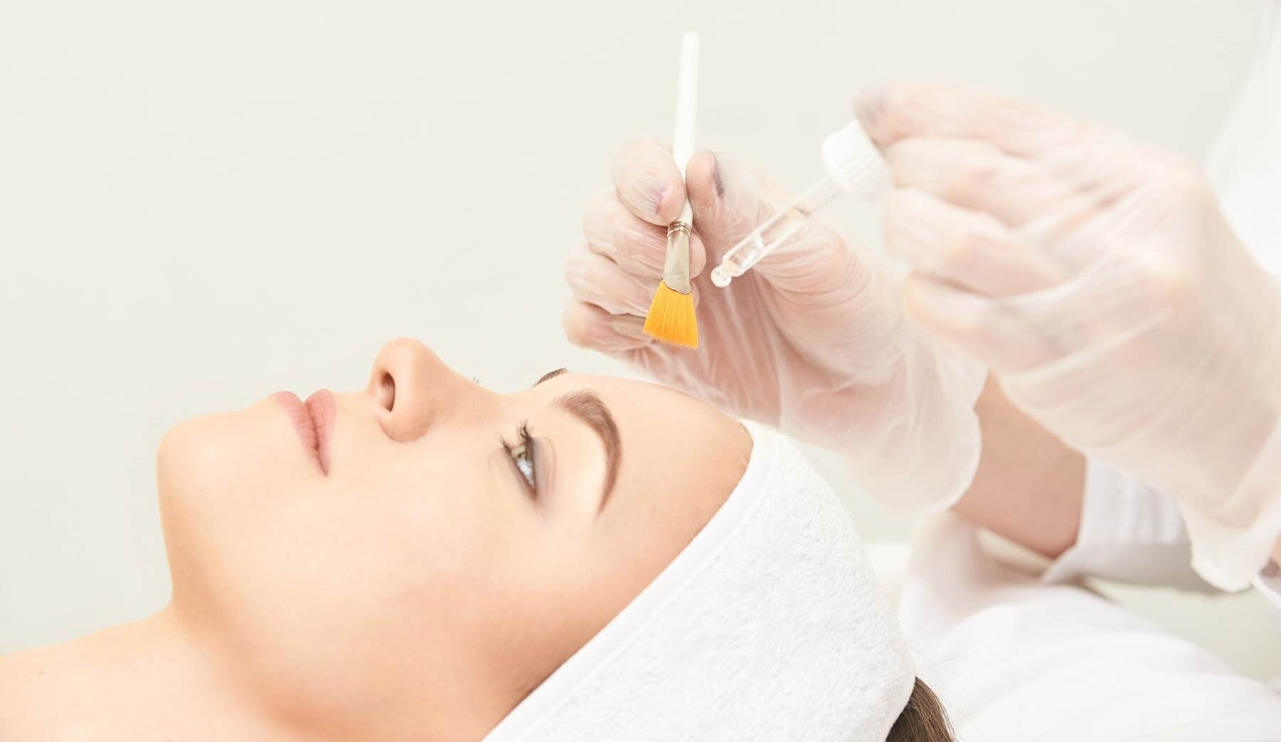 Application of a chemical peel