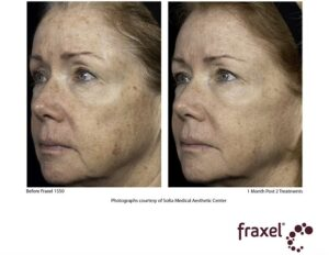 Fraxel before and after