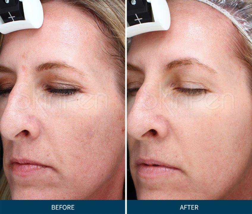 before and after skinpen